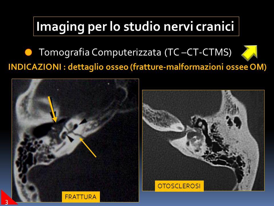 Imaging per lo studio nervi cranici Tomografia Computerizzata (TC –CT-CTMS) INDICAZIONI : dettaglio osseo (fratture-malformazioni ossee OM) FRATTURA O