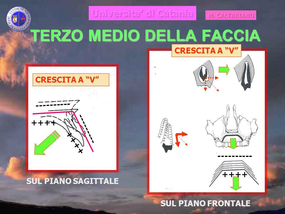 TERZO MEDIO DELLA FACCIA ++++ ---------- CRESCITA A V ++++ ---------- SUL PIANO SAGITTALE SUL PIANO FRONTALE