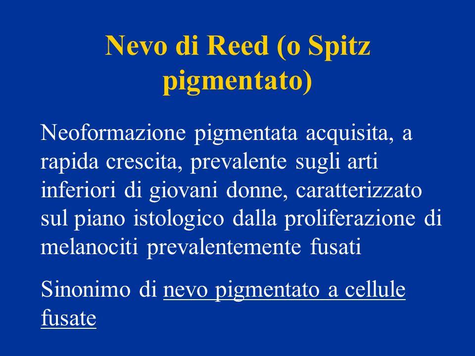 Nevo di Reed (o Spitz pigmentato) Neoformazione pigmentata acquisita, a rapida crescita, prevalente sugli arti inferiori di giovani donne, caratterizz