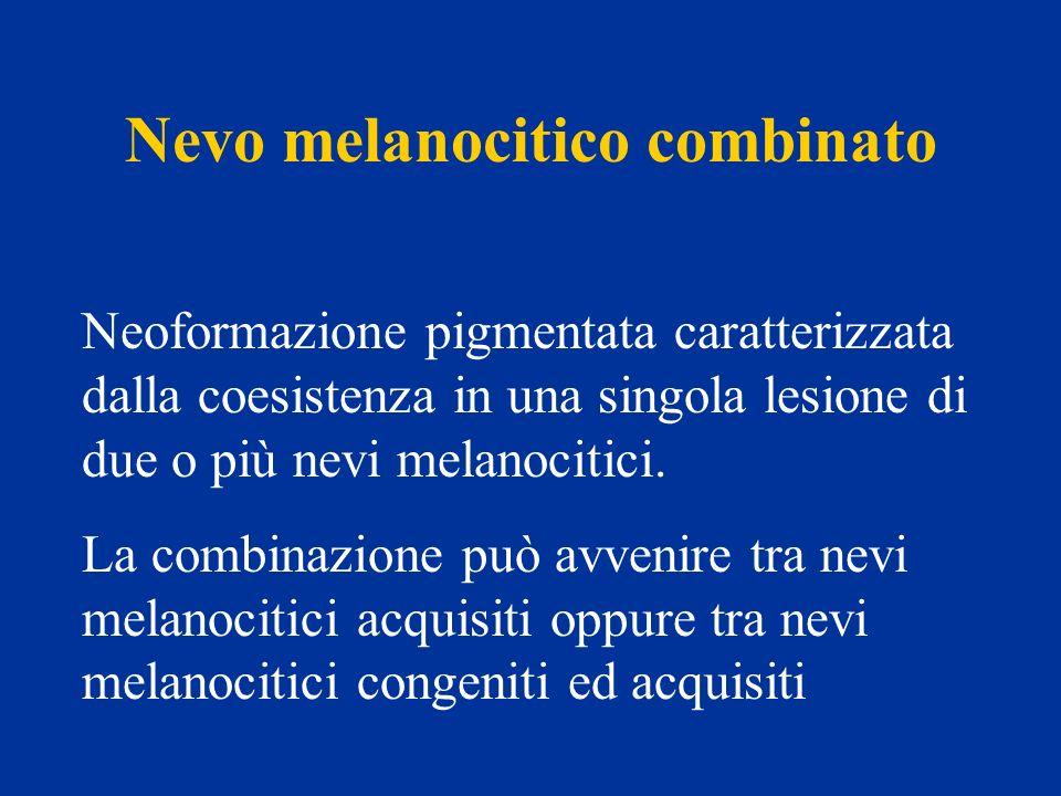 Nevo melanocitico combinato Neoformazione pigmentata caratterizzata dalla coesistenza in una singola lesione di due o più nevi melanocitici. La combin
