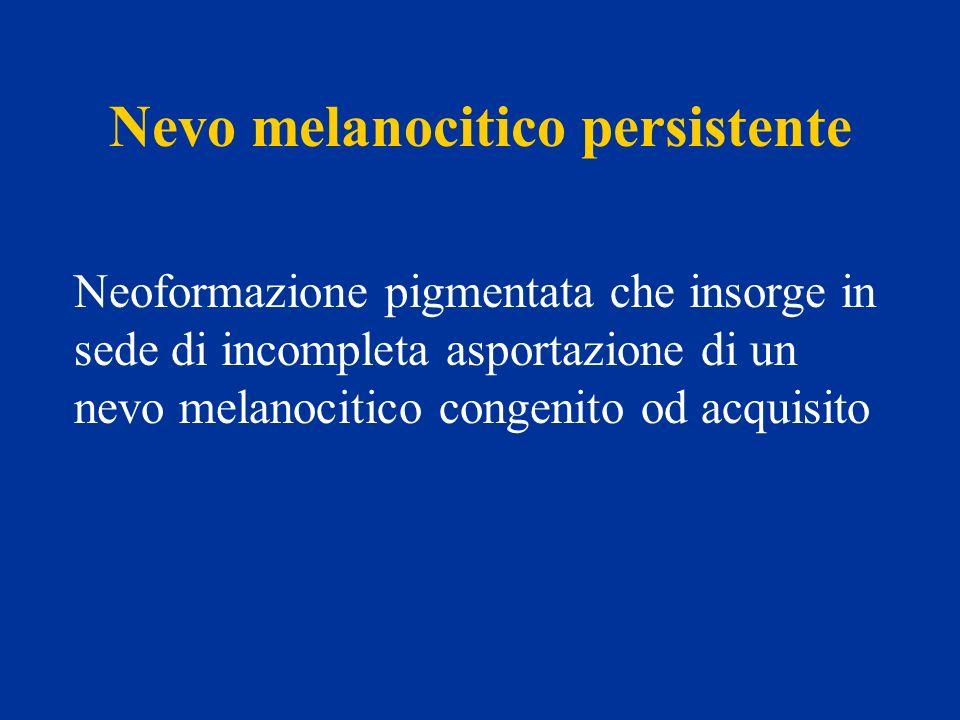 Nevo melanocitico in regressione Nevo melanocitico congenito od acquisito con evidenza di aree ipocromiche o acromiche e/o di atrofizzazione, non secondarie a traumi locali