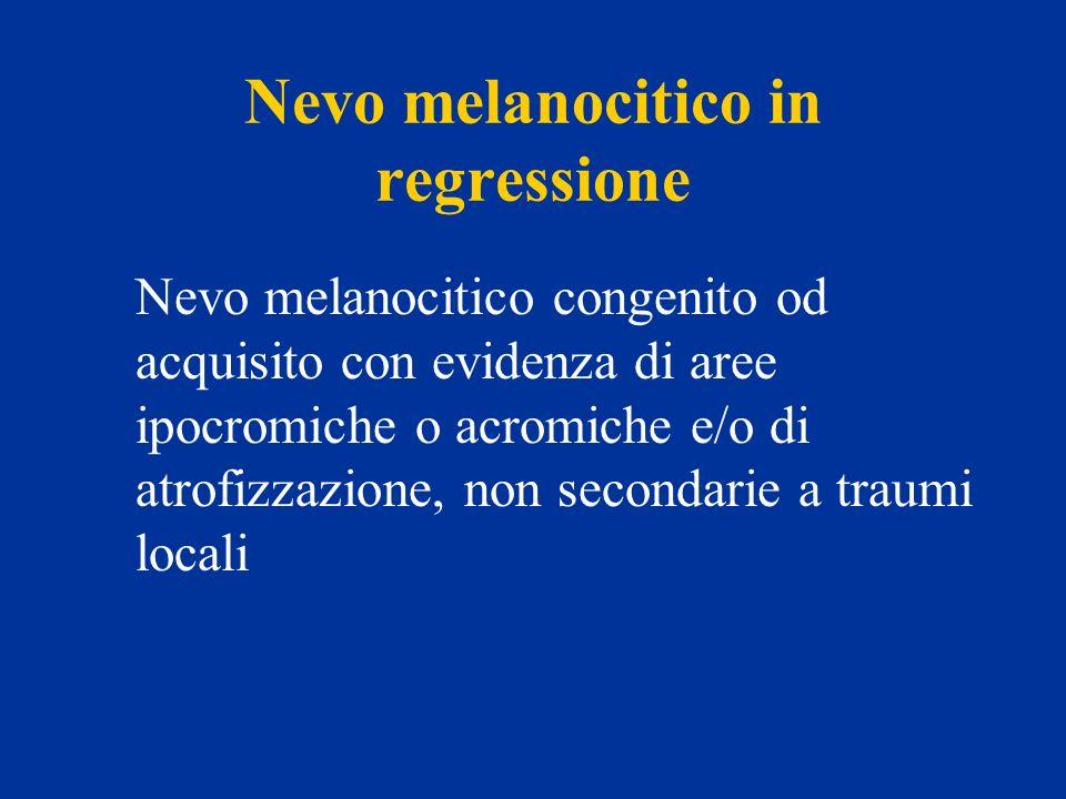 Nevo melanocitico in regressione Nevo melanocitico congenito od acquisito con evidenza di aree ipocromiche o acromiche e/o di atrofizzazione, non seco