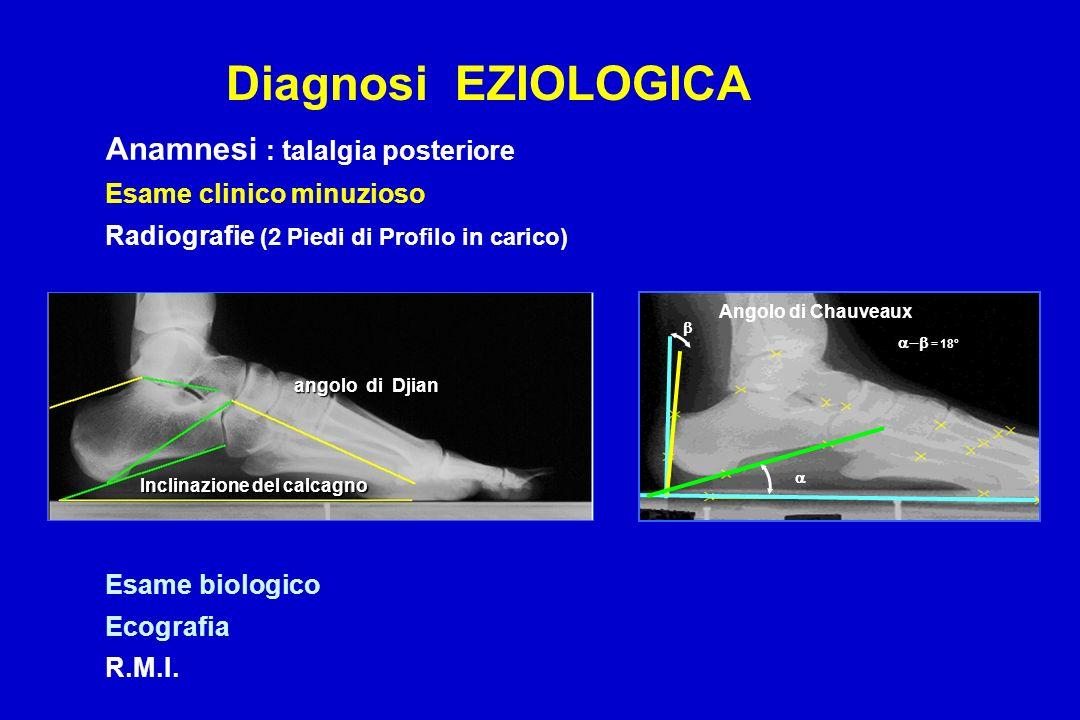 Anamnesi : talalgia posteriore Esame clinico minuzioso Radiografie (2 Piedi di Profilo in carico) Esame biologico Ecografia R.M.I. Diagnosi EZIOLOGICA