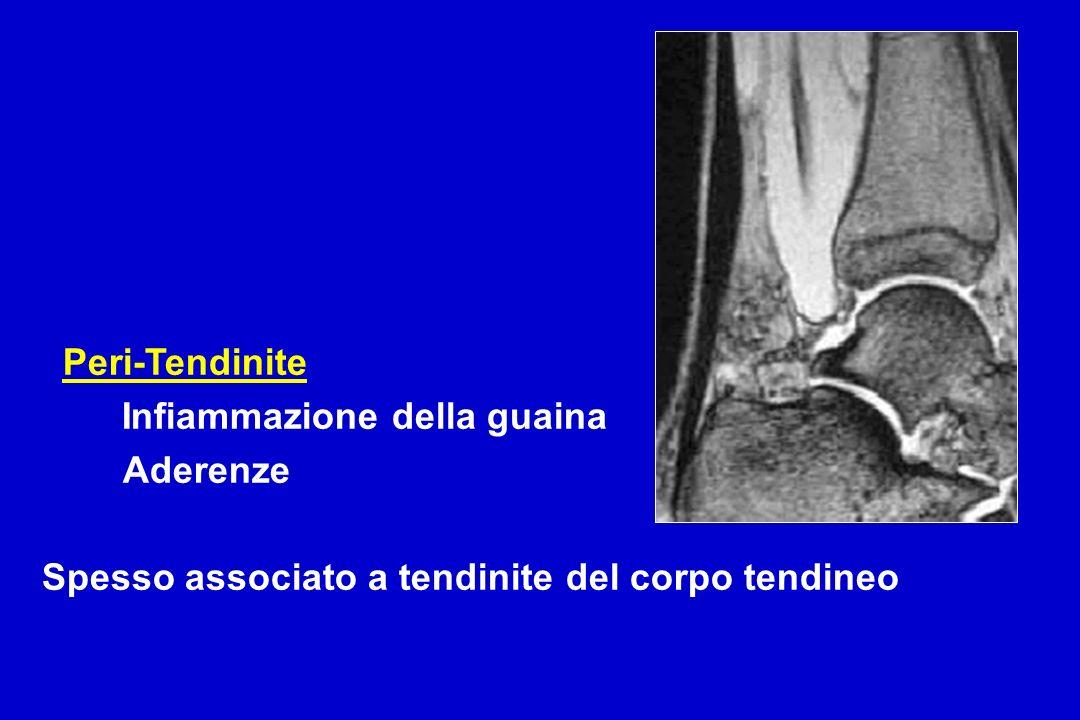 Peri-Tendinite Infiammazione della guaina Aderenze Spesso associato a tendinite del corpo tendineo
