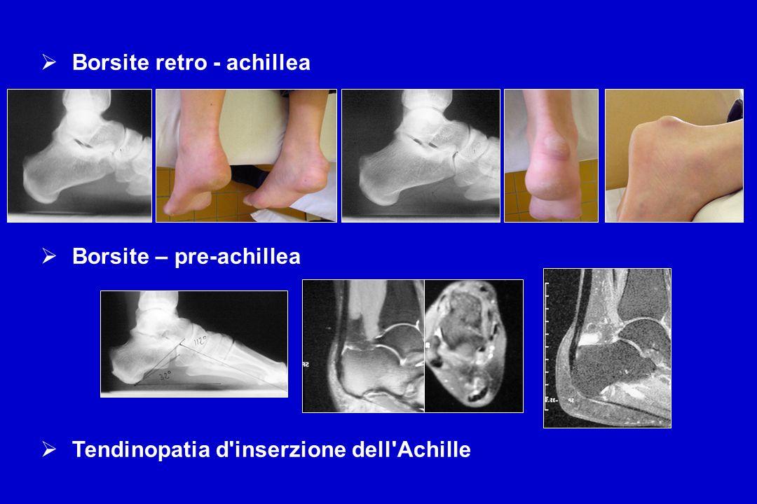 Borsite retro - achillea Borsite – pre-achillea Tendinopatia d'inserzione dell'Achille