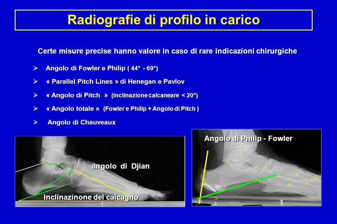 Radiografie di profilo in carico Angolo di Fowler e Philip ( 44° - 69°) « Parallel Pitch Lines » di Henegan e Pavlov « Angolo di Pitch » (inclinazione calcaneare < 20°) « Angolo totale » (Fowler e Philip + Angolo di Pitch ) Angolo di Chauveaux 62° Angolo di Philip - Fowler angolo di Djian Inclinazinone del calcagno Certe misure precise hanno valore in caso di rare indicazioni chirurgiche