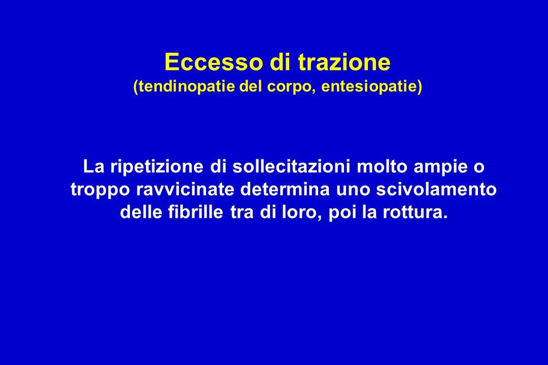 Eccesso di trazione (tendinopatie del corpo, entesiopatie) La ripetizione di sollecitazioni molto ampie o troppo ravvicinate determina uno scivolament