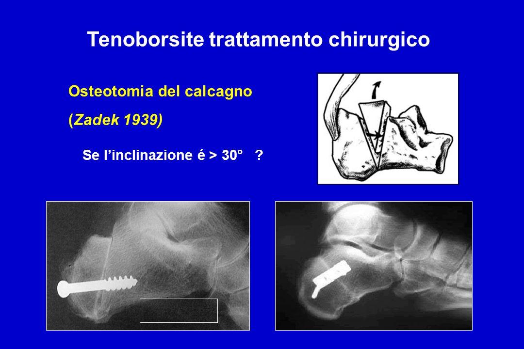 Osteotomia del calcagno (Zadek 1939) Tenoborsite trattamento chirurgico Se linclinazione é > 30° ?