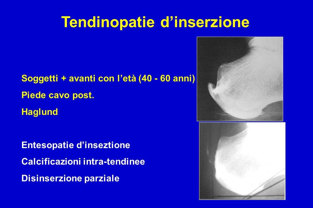 Tendinopatie dinserzione Soggetti + avanti con letà (40 - 60 anni) Piede cavo post. Haglund Entesopatie dinseztione Calcificazioni intra-tendinee Disi