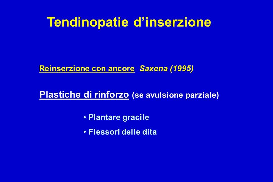 Reinserzione con ancore Saxena (1995) Plastiche di rinforzo (se avulsione parziale) Plantare gracile Flessori delle dita Tendinopatie dinserzione