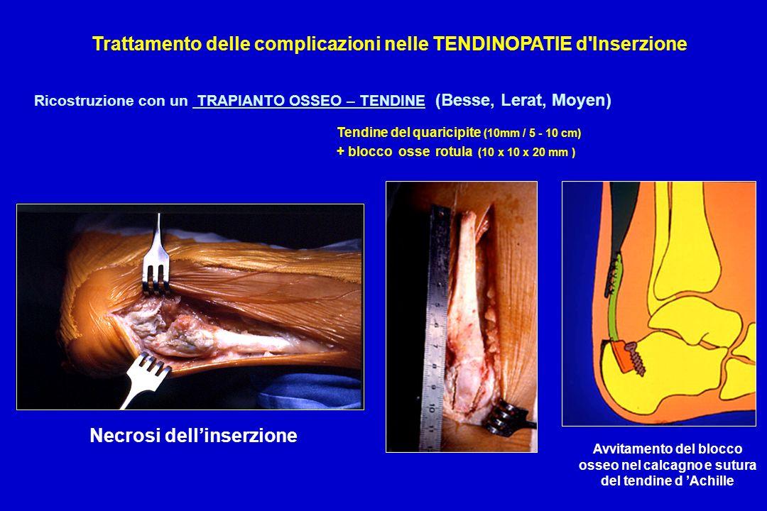 Ricostruzione con un TRAPIANTO OSSEO – TENDINE (Besse, Lerat, Moyen) Tendine del quaricipite (10mm / 5 - 10 cm) + blocco osse rotula (10 x 10 x 20 mm
