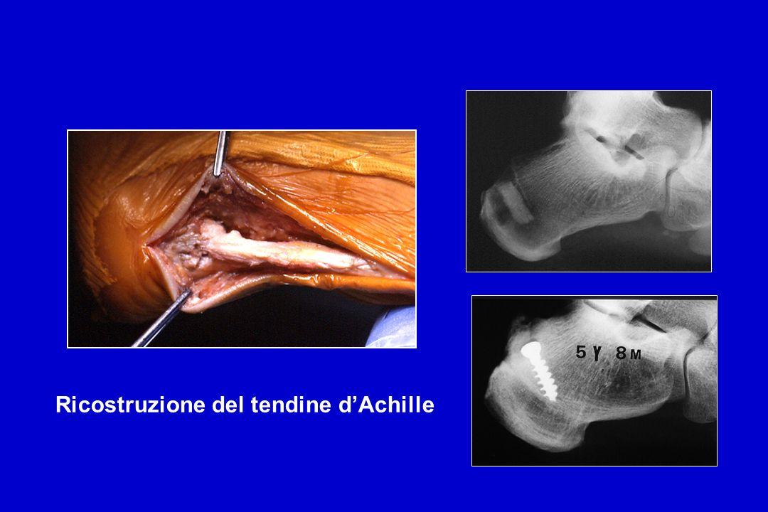 Ricostruzione del tendine dAchille