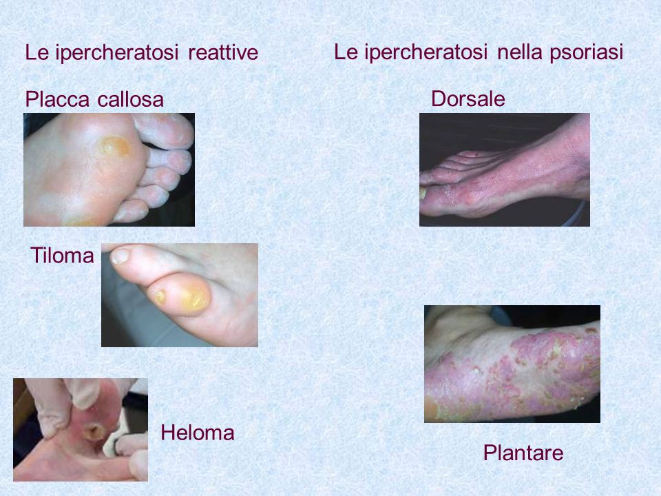 Le ipercheratosi reattive Placca callosa Tiloma Heloma Le ipercheratosi nella psoriasi Dorsale Plantare