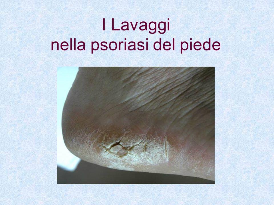 I Lavaggi nella psoriasi del piede