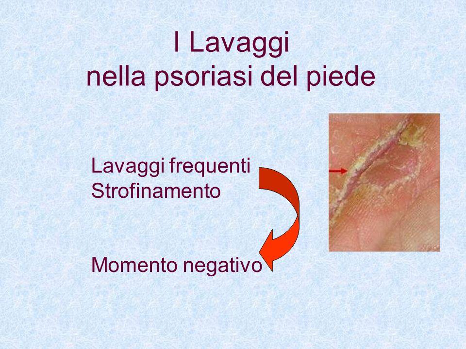 Utilizzo di crema da lavaggio (base lavante) Prive di Sodio Lauril Solfati Non schiumogene Non irritanti Ricche di grassi emollienti I Lavaggi nella psoriasi del piede