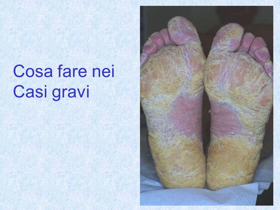 I principi di trattamento nella psoriasi plantare Crema consigliata : Acido salicilico 2% Zolfo colloidale 2% In crema evanescente senza vaselina
