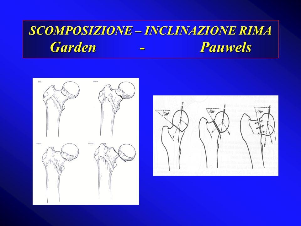 SCOMPOSIZIONE – INCLINAZIONE RIMA Garden-Pauwels