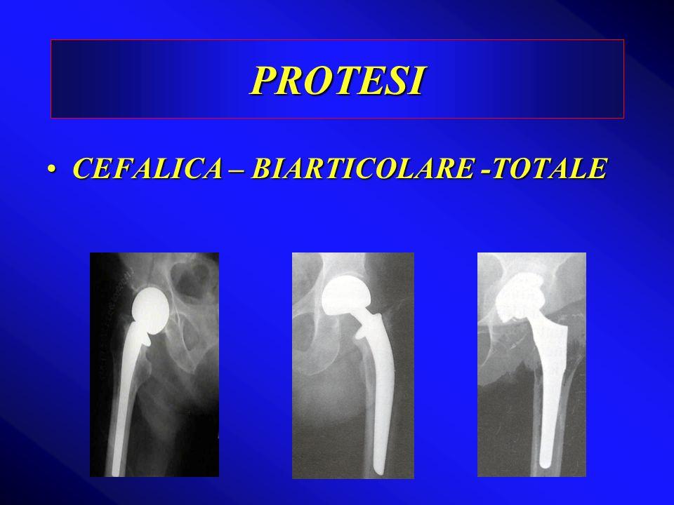 CEFALICA – BIARTICOLARE -TOTALECEFALICA – BIARTICOLARE -TOTALE PROTESI