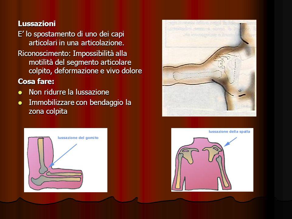 Lussazioni E lo spostamento di uno dei capi articolari in una articolazione. Riconoscimento: Impossibilità alla motilità del segmento articolare colpi