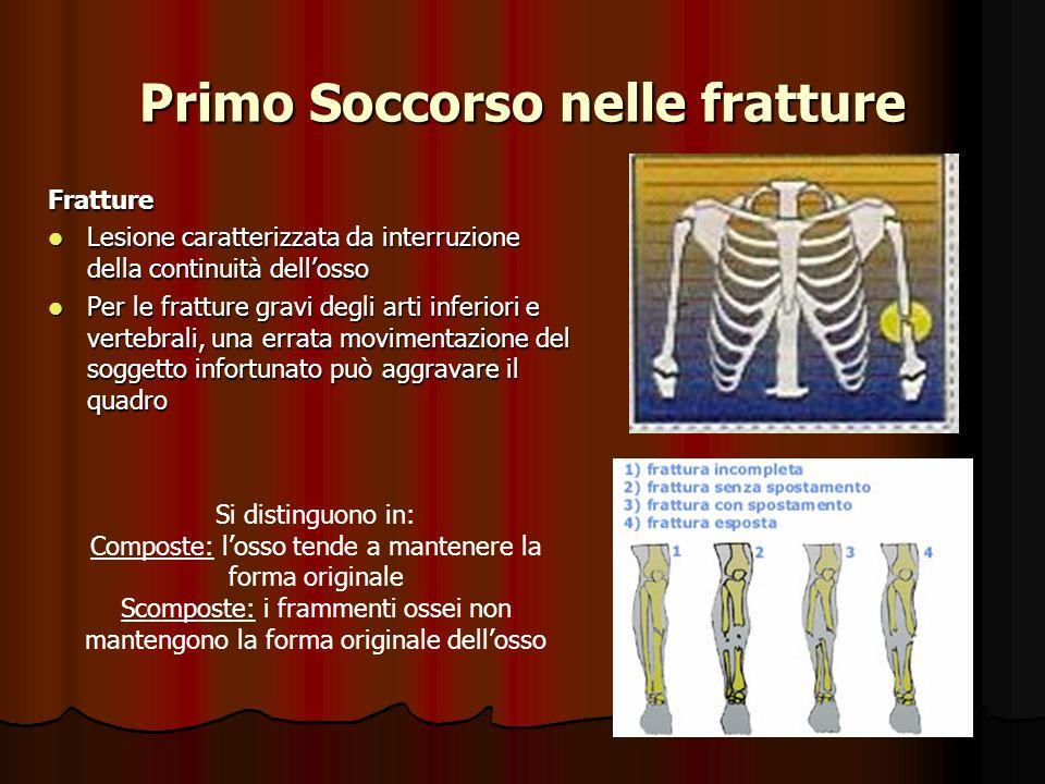 Primo Soccorso nelle fratture Fratture Lesione caratterizzata da interruzione della continuità dellosso Lesione caratterizzata da interruzione della c