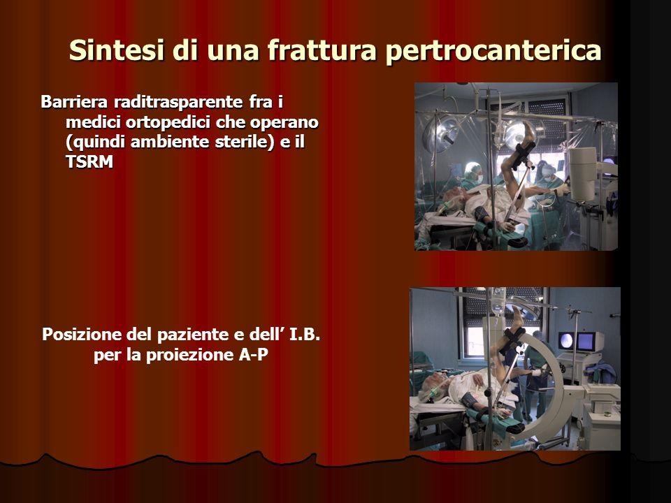 Sintesi di una frattura pertrocanterica Barriera raditrasparente fra i medici ortopedici che operano (quindi ambiente sterile) e il TSRM Posizione del