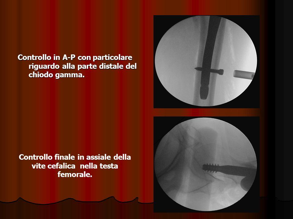 Controllo in A-P con particolare riguardo alla parte distale del chiodo gamma. Controllo finale in assiale della vite cefalica nella testa femorale.