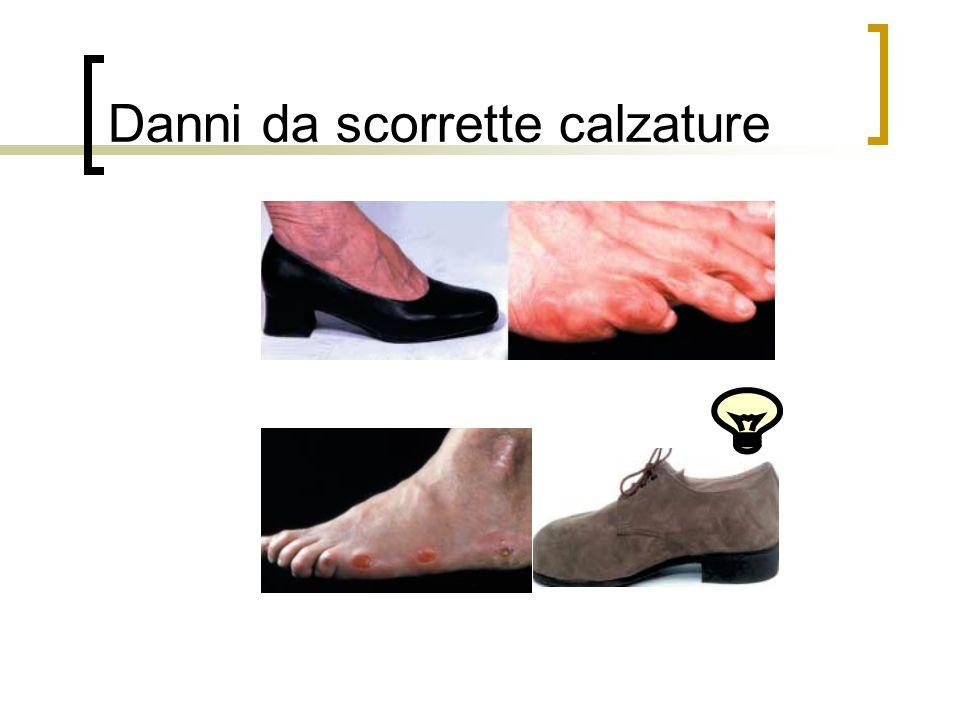 Danni da scorrette calzature
