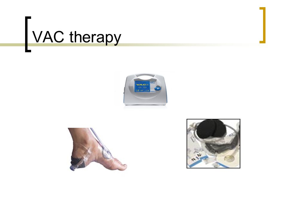VAC therapy
