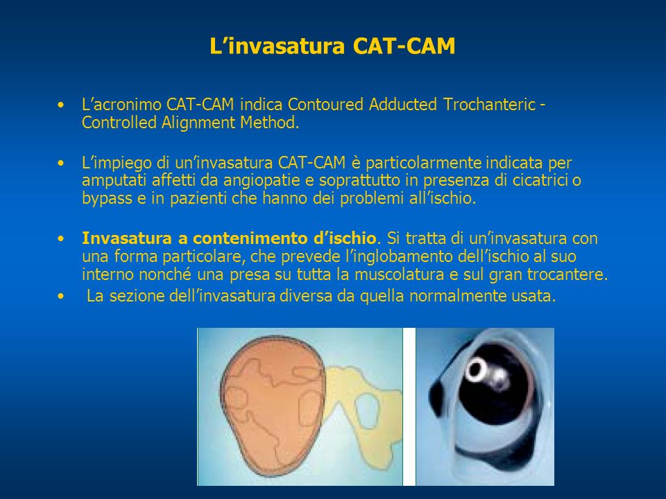 Linvasatura CAT-CAM Lacronimo CAT-CAM indica Contoured Adducted Trochanteric - Controlled Alignment Method. Limpiego di uninvasatura CAT-CAM è partico