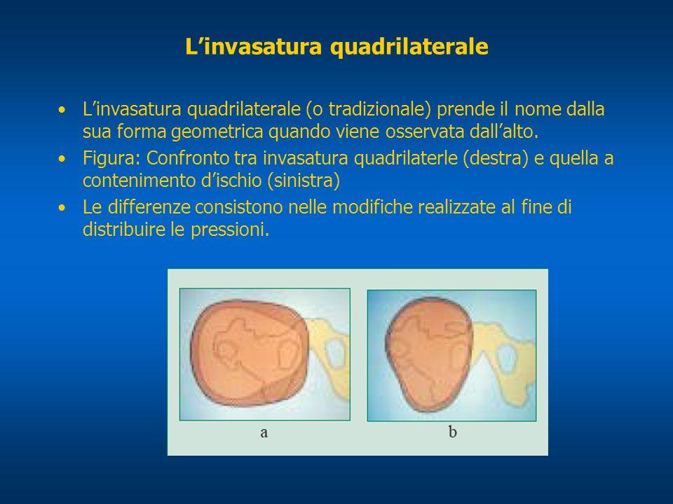 Linvasatura quadrilaterale Linvasatura quadrilaterale (o tradizionale) prende il nome dalla sua forma geometrica quando viene osservata dallalto. Figu