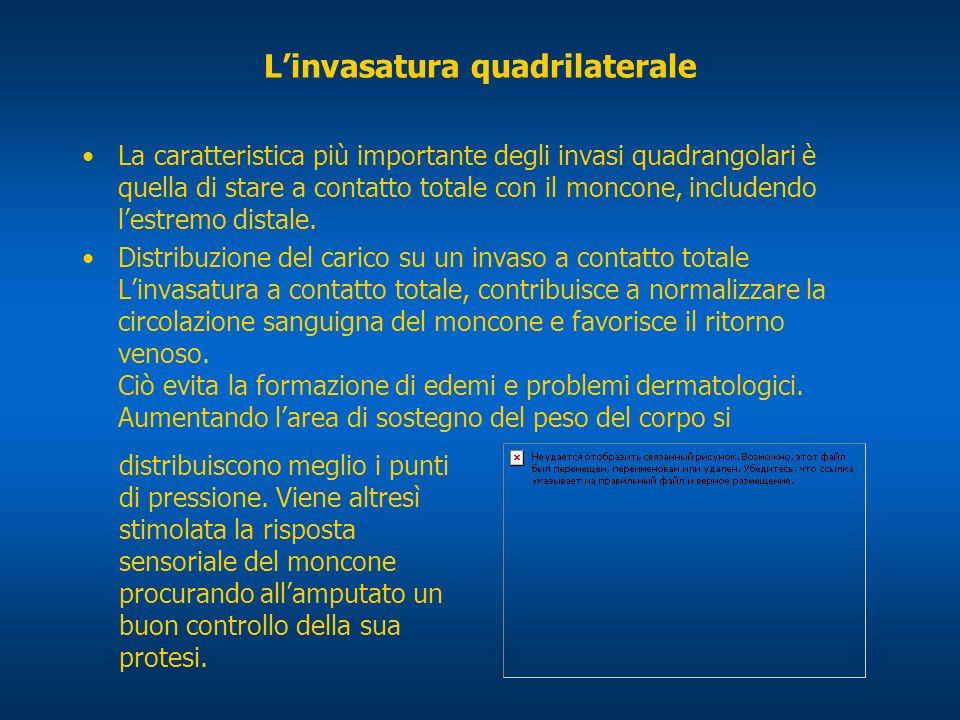Linvasatura quadrilaterale La caratteristica più importante degli invasi quadrangolari è quella di stare a contatto totale con il moncone, includendo