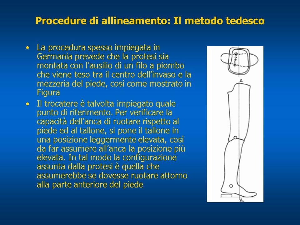 Procedure di allineamento: Il metodo tedesco La procedura spesso impiegata in Germania prevede che la protesi sia montata con lausilio di un filo a pi