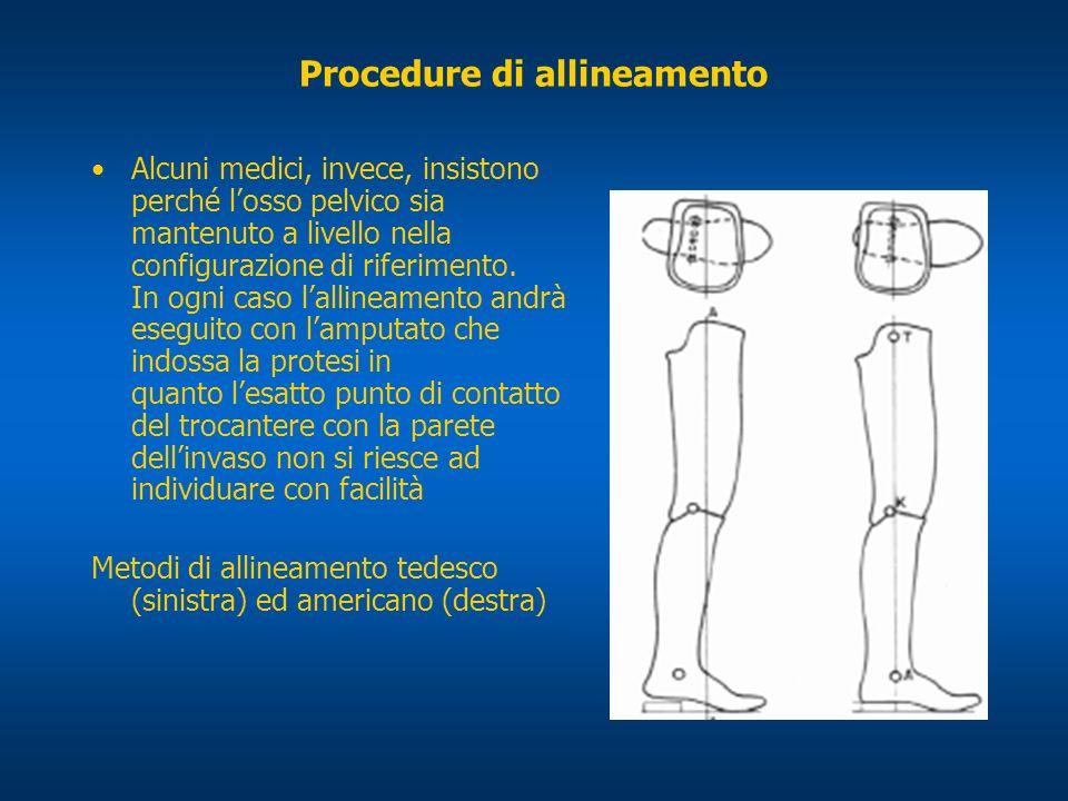 Procedure di allineamento Alcuni medici, invece, insistono perché losso pelvico sia mantenuto a livello nella configurazione di riferimento. In ogni c