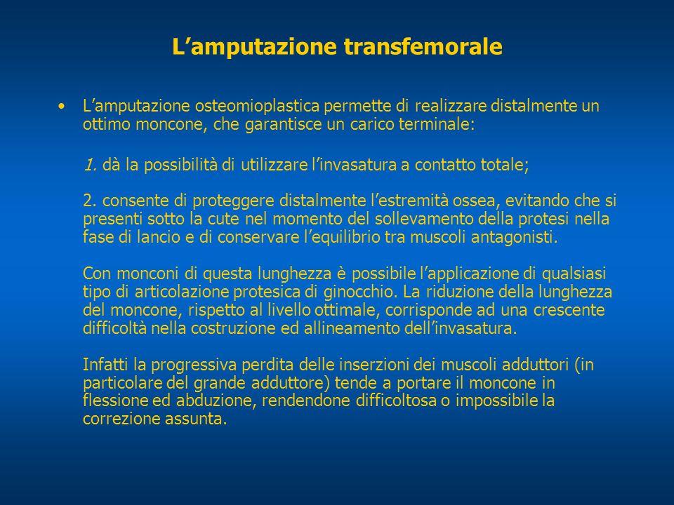 Lamputazione transfemorale Lamputazione osteomioplastica permette di realizzare distalmente un ottimo moncone, che garantisce un carico terminale: 1.