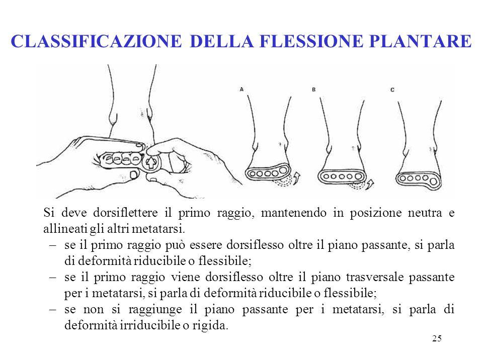 24 POSIZIONE DELLAVAMPIEDE: AVAMPIEDE VALGO (2) A causa di questa anomala supinazione, durante la fase di appoggio, la capacità del piede di subire l'