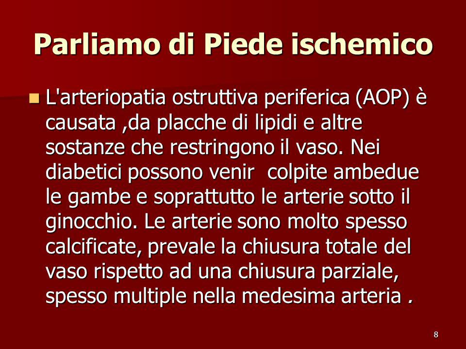 8 Parliamo di Piede ischemico L'arteriopatia ostruttiva periferica (AOP) è causata,da placche di lipidi e altre sostanze che restringono il vaso. Nei