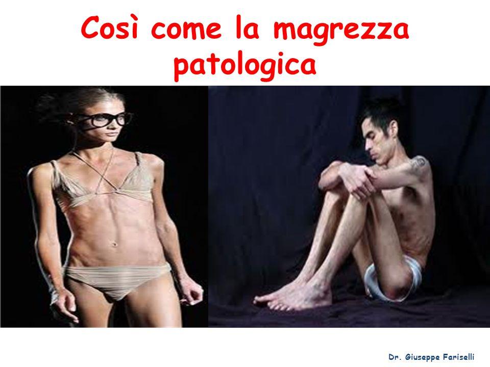 Così come la magrezza patologica Dr. Giuseppe Fariselli