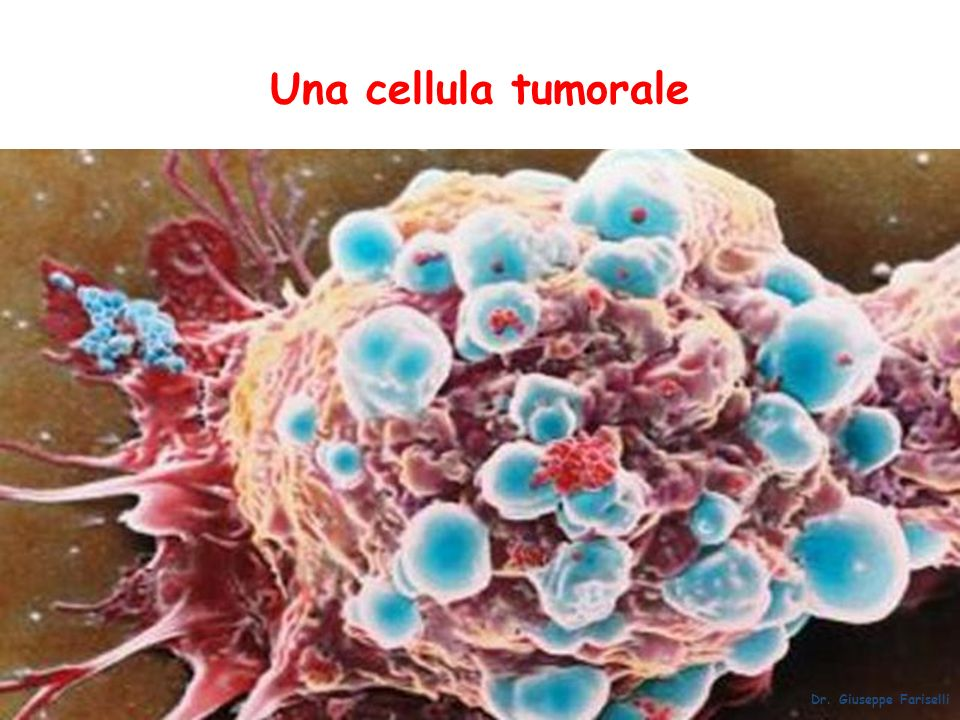 Una cellula tumorale Dr. Giuseppe Fariselli