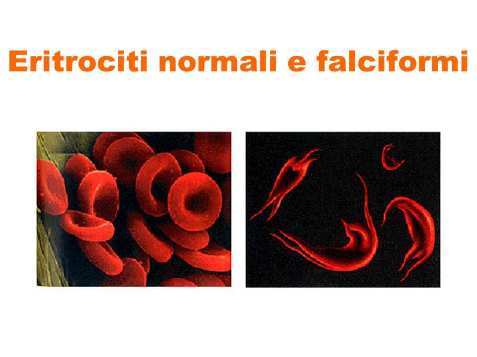 Eritrociti normali e falciformi