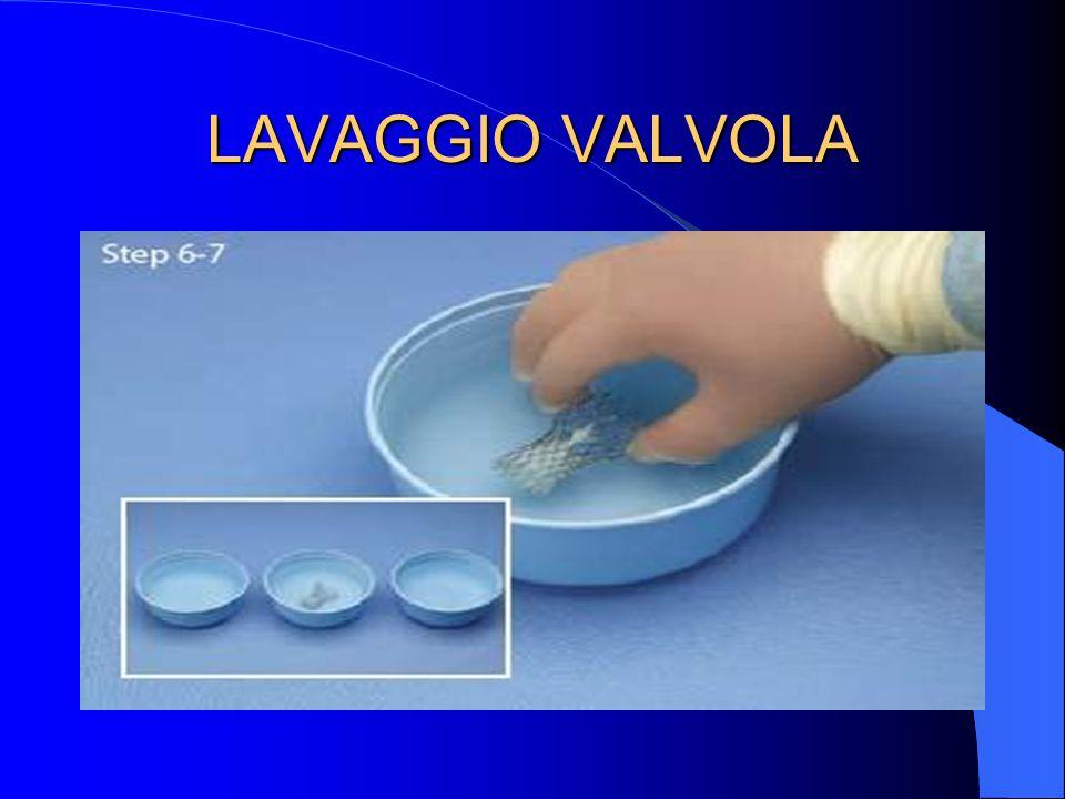 LAVAGGIO VALVOLA