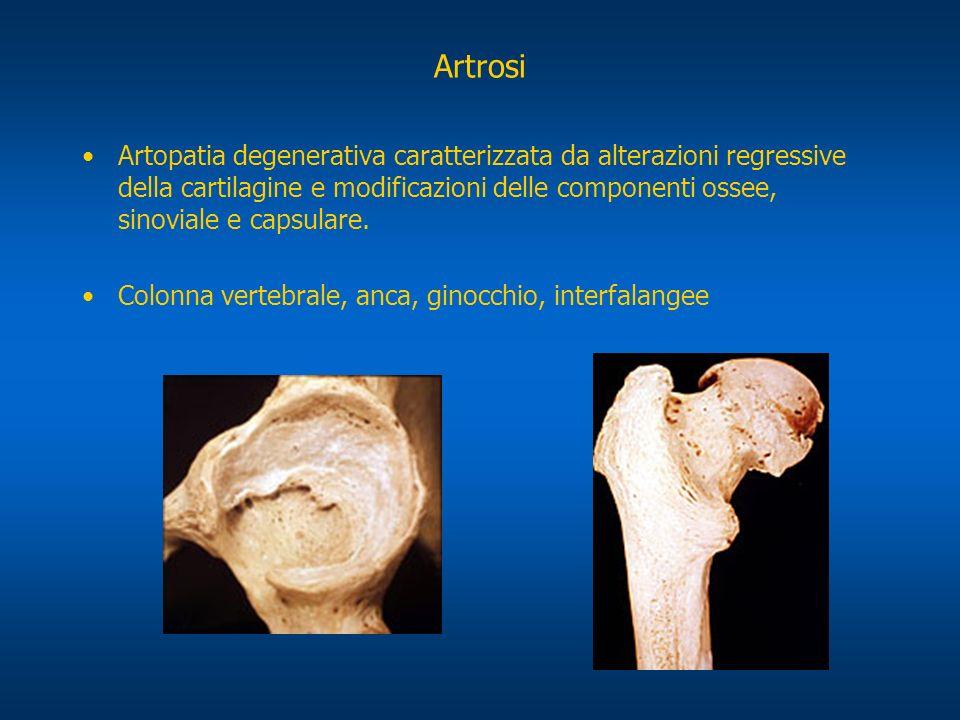 Artrosi dellanca: Displasia dellanca (congenita) (deformazione dellosso) Coaxaplana (osteocondrosi infantile) Coaxavara (epifisiolisi)