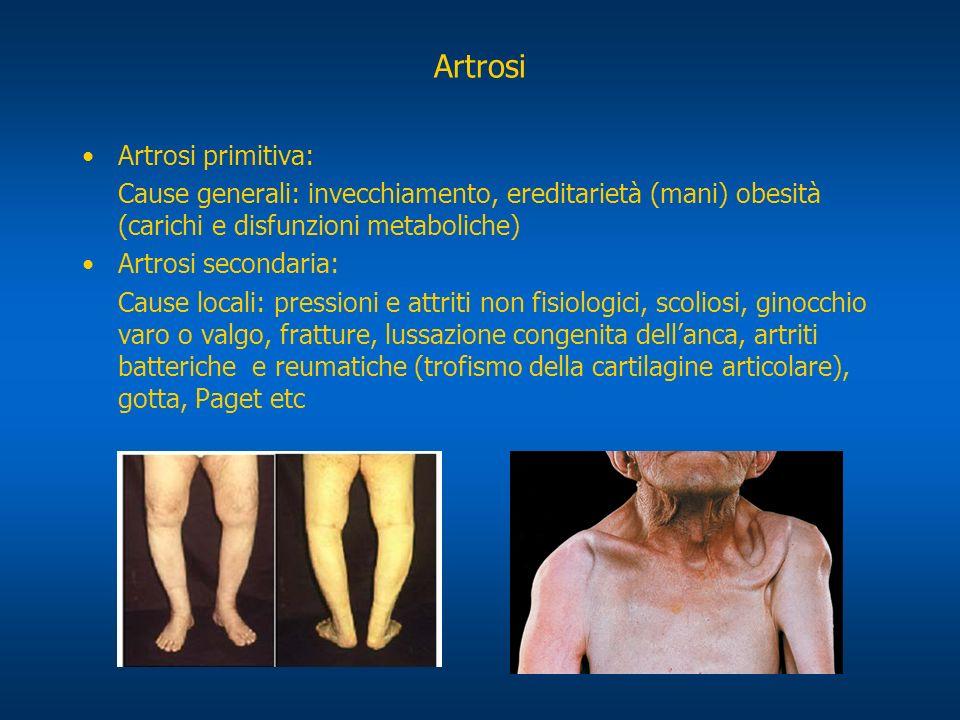 Sintomatologia Il dolore si avverte sullanca, fascia interna della coscia e ginocchio.