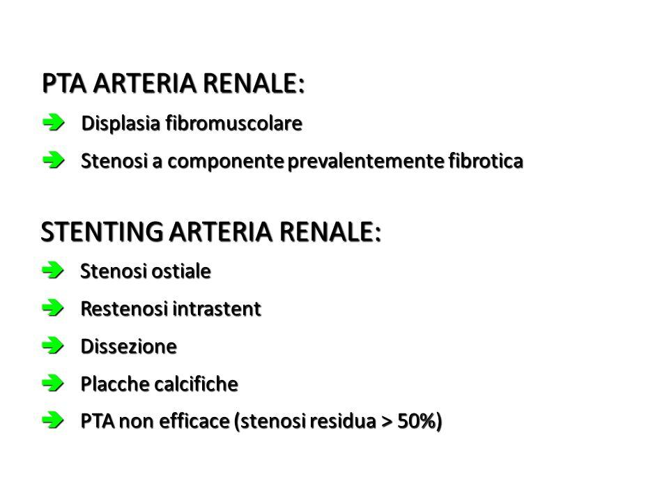 PTA ARTERIA RENALE: Displasia fibromuscolare Displasia fibromuscolare Stenosi a componente prevalentemente fibrotica Stenosi a componente prevalenteme