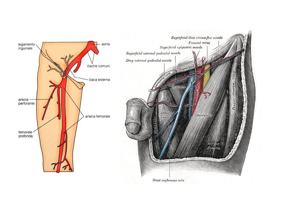 PTA Si oltrepassa la stenosi Si esegue dilatazione