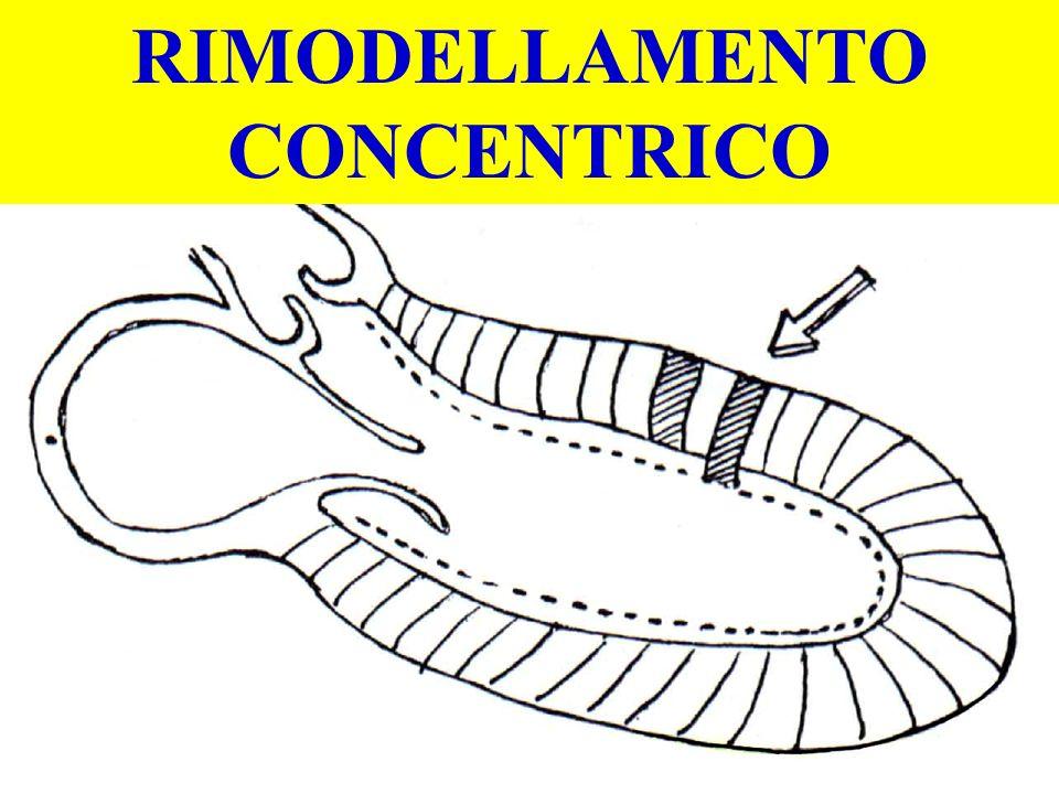 RIMODELLAMENTO CONCENTRICO