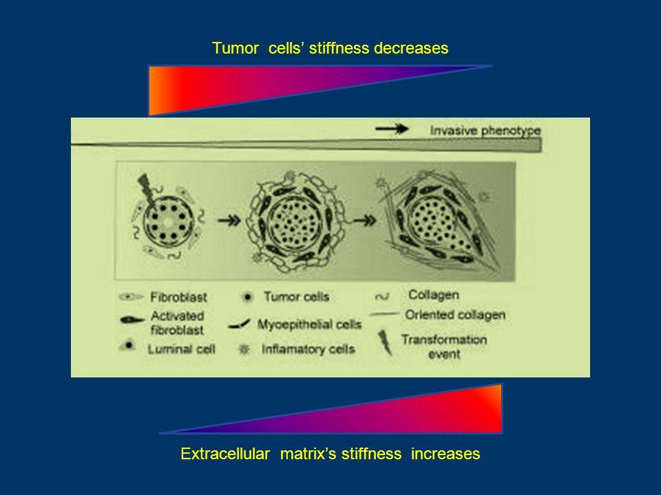 Tumor cells stiffness decreases Extracellular matrixs stiffness increases
