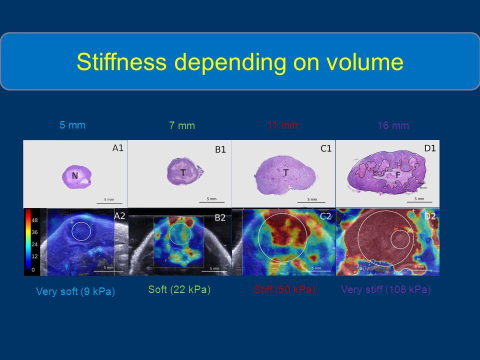 Stiffness depending on volume a) Very soft (9 kPa) Stiff (50 kPa)Very stiff (108 kPa) Soft (22 kPa) 5 mm 11 mm 16 mm7 mm