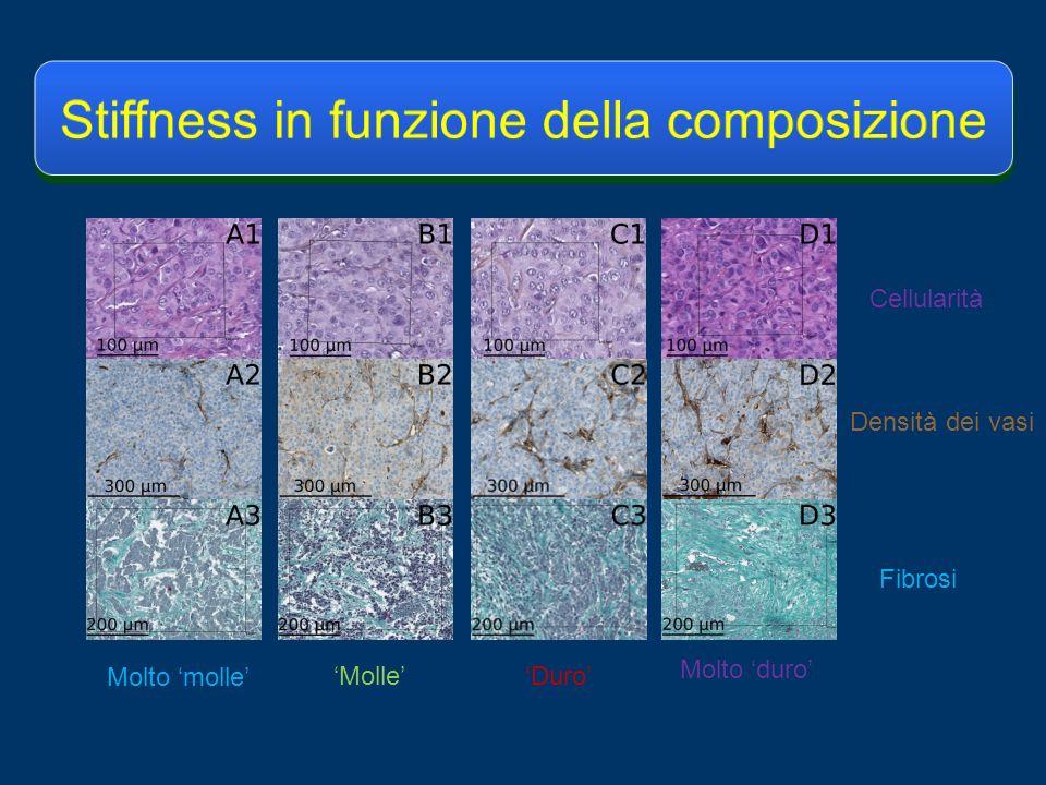 Densità dei vasi Cellularità Fibrosi Molto molle Duro Molto duro Molle