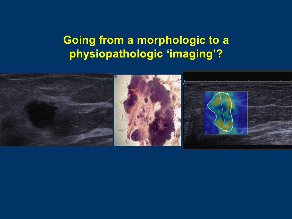Going from a morphologic to a physiopathologic imaging?