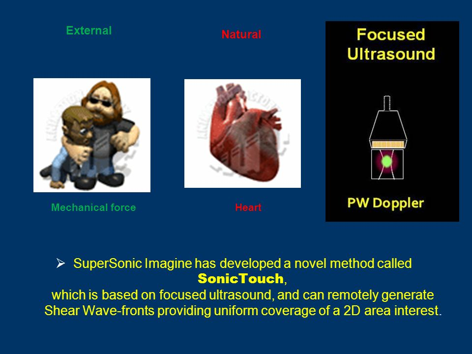 External Mechanical force Natural Hear t SuperSonic Imagine has developed a novel method called SonicTouch, which is based on focused ultrasound, and